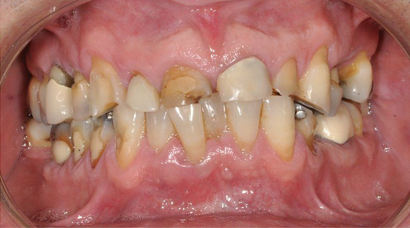 Rehabilitacion-oral1