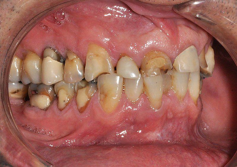 Rehabilitacion-oral2