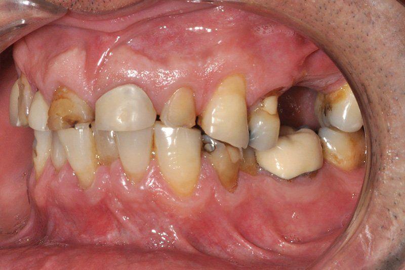 Rehabilitacion-oral3