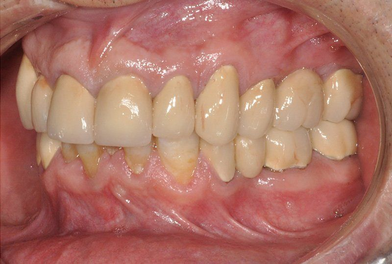 Rehabilitacion-oral8