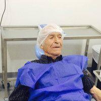 Paciente de 90 años operado para instalación de 2 implantes en el sector anterior con injerto óseo.