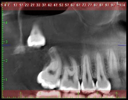 Exodoncia de terceros molares incluidos | Matias San Martin
